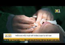 Công nghệ mới, phẫu thuật khúc xạ không chạm mắt tại Việt Nam | HANOITV