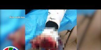 Xem THVL | Dùng điện thoại khi đang sạc, nam thanh niên bị nổ bàn tay